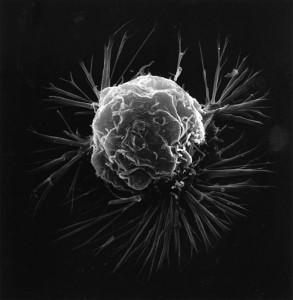 586px-Breast_cancer_cell_2